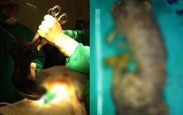 Phàn nàn vì đau bụng vài ngày sau khi sinh con, người phụ nữ đi phẫu thuật thì thấy thứ kinh dị này