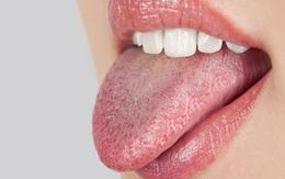9 biện pháp khắc phục và ngăn ngừa tình trạng khô miệng bạn hoàn toàn có thể làm ở nhà