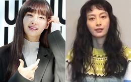 """2 năm sau đám cưới với Won Bin, Lee Na Young """"biến hình"""" tiều tụy, già nua chưa từng thấy"""