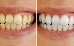 Răng trắng, cao răng bong ra từng mảng chỉ với một miếng bánh mì cháy