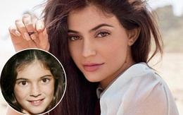 Đẹp nhờ dao kéo, Kylie Jenner lo khuôn mặt kém xinh trước đây sẽ di truyền cho con?