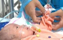 """Cuộc gặp gỡ xúc động của 2 đứa trẻ sau vụ cháy lớn ở Đê La Thành: """"Anh đây, em đừng khóc"""""""