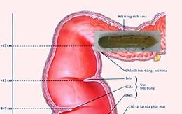 Một bác sĩ phải cấp cứu vì lọt cả quả dưa leo vào bụng