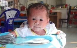 Phép màu kỳ diệu đã đến với bé gái 14 tháng tuổi người đầy vẩy ngứa như da trăn