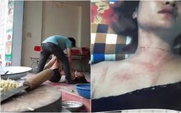 Vợ đau đớn chia sẻ chuyện chồng ngoại tình, đánh đập rồi đuổi 2 mẹ con ra khỏi nhà: Chính quyền địa phương lên tiếng
