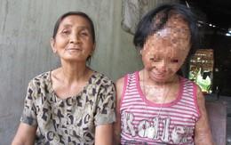 Nghẹn lòng ước mơ của bé gái bị tình địch của mẹ tạt a-xít mù hai mắt