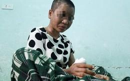 Lời kể rùng rợn của cô gái nghi bị chủ tra tấn dã man