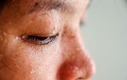 Hàng loạt dấu hiệu cảnh báo cơ thể bạn đang tích tụ quá nhiều độc tố