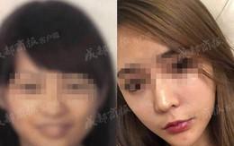 Gọt cằm quá đà từ nhiều năm trước, cô gái trẻ không được lên máy bay do bị hệ thống nhận diện sân bay từ chối