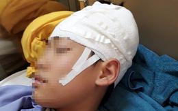 """Quảng Ninh: Nam sinh lớp 9 nhập viện, """"nghi"""" bị thầy giáo tát khiến tụ máu ở đầu"""