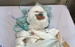 Mẹ thất thần nhìn con hôn mê trên giường bệnh sau khi bị người đàn ông nước ngoài bịt mặt tẩm xăng thiêu sống