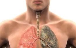 8 dấu hiệu sớm và triệu chứng ung thư phổi