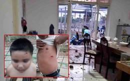 Kinh hoàng nhóm giang hồ nổ súng truy sát cả gia đình ở Sài Gòn, bố mẹ và con nhỏ bị bắn thương tích nhiều chỗ