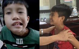 Bé trai 8 tuổi liệt mặt, méo miệng do thói quen dùng điều hoà sai cách