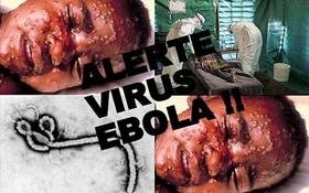"""Nguy cơ tái bùng phát dịch Ebola vì… """"tự sướng"""""""