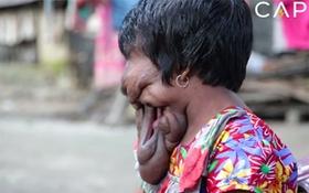 Cô gái bị khối u chảy xệ che phủ khắp khuôn mặt