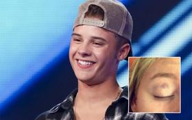 """Xinh trai mà vũ phu, cái kết đắng cho chàng thí sinh """"X-Factor"""""""