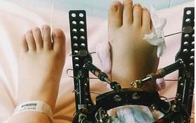Bất chấp mọi đau đớn, cô gái kéo chân dài thêm 18cm