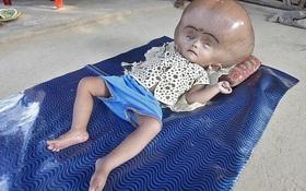 """Cô bé """"người ngoài hành tinh"""" được tìm thấy trong ngôi làng nghèo khó, 3 năm sau em đã thay đổi thần kỳ"""