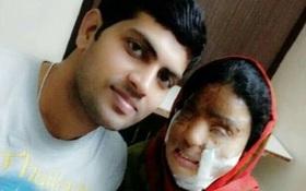 Người phụ nữ bị tạt axit tới biến dạng khuôn mặt vì dám từ chối kết hôn, 14 năm sau, điều kỳ diệu đã đến