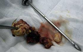 Phẫu thuật khối u dị dạng trong ngực thiếu nữ
