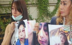 Đang xinh đẹp, người mẫu Thái bỗng hỏng miệng, sụp má vì phẫu thuật thẩm mỹ hỏng