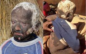 Cậu bé đáng thương với làn da bị hóa đá