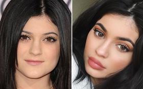 Kylie Jenner hối hận vì từng bơm môi quá đà