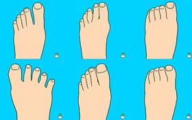 Hình dáng ngón chân bật mí gì về tính cách con người