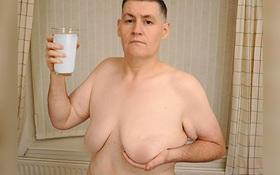 Người đàn ông mọc ti do uống quá nhiều sữa đậu nành