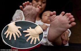 Bé trai chào đời với dị tật 31 ngón cả tay và chân