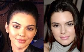 Kendall Jenner cũng đã tiếp bước Kylie đến thẩm mỹ viện bơm môi rồi sao?