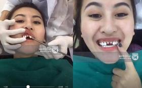 Tự livestream cảnh làm răng, Hà Lade khiến dân tình choáng nặng vì hai răng cửa mài bé tí