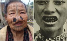 Mài răng, đục mũi... là cách mà phụ nữ đã làm để tránh bị xâm hại tình dục