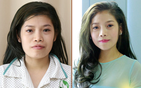 Cô gái trẻ lột xác thành thiên nga sau phẫu thuật V-line