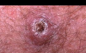 Những cách trị mụn tiềm ẩn nguy cơ gây ung thư da cao
