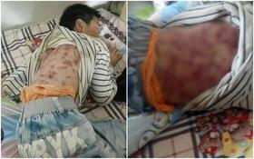 Cơ thể chi chít vết thương của bé trai 10 tuổi bị người yêu của mẹ bạo hành