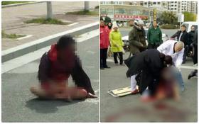 Người phụ nữ không mảnh vải che thân bị con trai đánh chảy máu mặt ngay giữa đường