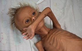 Hình ảnh đau lòng về những đứa trẻ phải sống trong chiến tranh