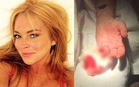 Gặp tai nạn, Lindsay Lohan bị đứt lìa nửa ngón tay áp út