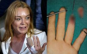 Lộ thêm ảnh về đầu ngón tay bị đứt lìa của Lindsay Lohan