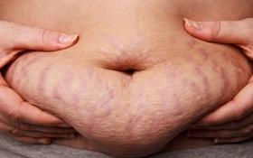 Phàm ở đời cái gì cũng có thể biến mất - chỉ trừ mỡ bụng thôi. Và đây là lý do...