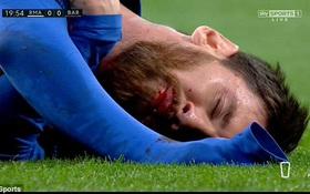Xót xa nhìn cảnh Messi bị thúc cùi chỏ chảy máu mồm