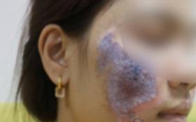 """Hà Nội: Dùng kem trộn, một phụ nữ bị """"lột sạch"""" da mặt, mất hàng trăm triệu điều trị nhưng chỉ phục hồi được 30-40%"""