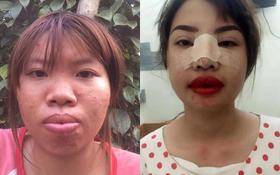 """Bị bạn bè xa lánh vì ngoại hình xấu xí, bà mẹ đơn thân ở Đắk Nông quyết """"đập mặt làm lại"""""""