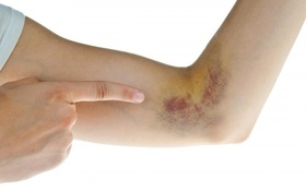 Đừng xem thường những vết bầm tím trên da bởi nó có thể là dấu hiệu cảnh báo nhiều bệnh nguy hiểm