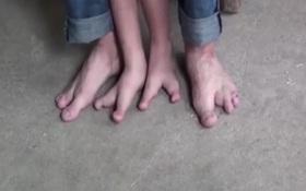 Đôi chân như cặp càng cua của bé trai hai ngón
