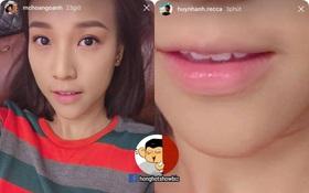Chia tay gần nửa năm, Huỳnh Anh vẫn đăng ảnh môi Hoàng Oanh lên Instagram