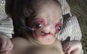 Em bé dị tật chào đời với đôi mắt lồi đỏ ngầu khiến nhiều người sợ hãi