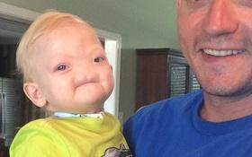 Em bé sinh ra không có mũi, cuối cùng, bé đã qua đời sau 2 năm chiến đấu với bệnh tật